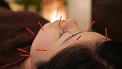 中医美容鍼灸HariColle(だるま鍼灸院内)