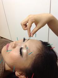 鍼灸salon NICE(ニース)