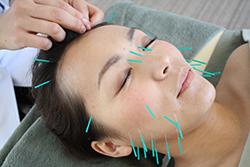女性専門美容鍼 シナケアラボ