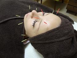 ハリウッド式美容鍼灸サロン(R)うめもと鍼灸整骨院